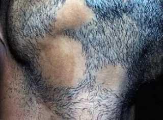 Выпадают волосы на бороде: что делать и как лечить?
