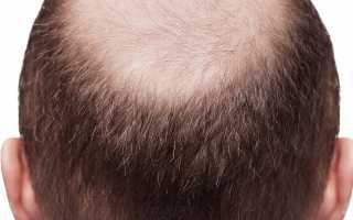 Заболевания волос и кожи головы: советы и рекомендации