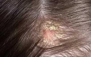 Себорейное выпадение волос: симптомы и лечение