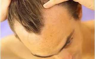 Как остановить выпадение волос у мужчин?