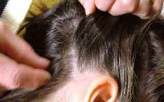 У ребенка (5 лет) началась алопеция: что делать?