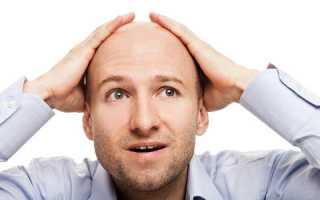 Очаговая алопеция у мужчин: симптомы, причины и лечение