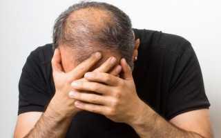 Облысение у мужчин. Как его предотвратить и что делать при облысении?
