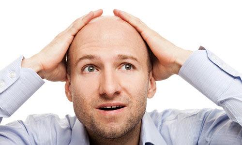 Причины и лечение очаговой алопеции у мужчин