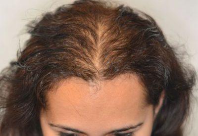 Очень сильное выпадение волос резкое