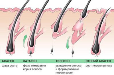 Алопеция – причины и симптомы алопеции
