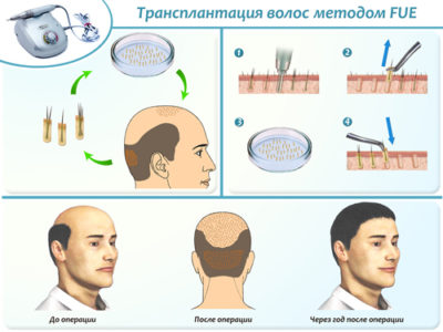 Основные препараты и процедуры для лечения алопеции у женщин