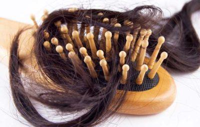 Сколько должно выпадать волос в норме?