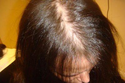 Андрогенная алопеция у женщин лечение