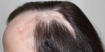 Заболевания кожи головы при которых выпадают волосы