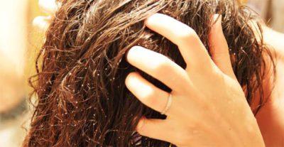 Солевая маска для волос от выпадения
