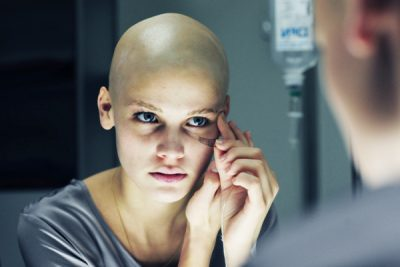 Выпадение волос после химиотерапии чем лечить